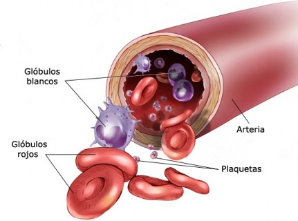 Leukemia_blood_large_Spanish
